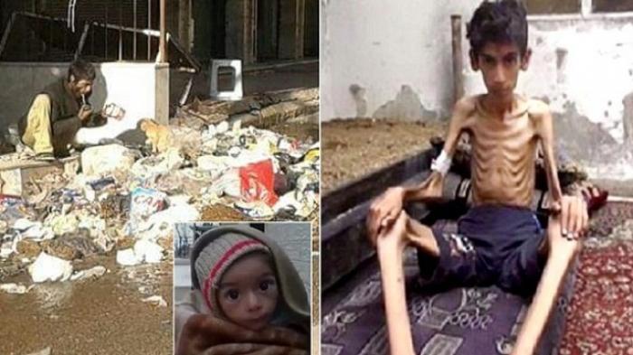 Tragis! Korban Perang Suriah Makan Kucing, Rumput dan Sampah