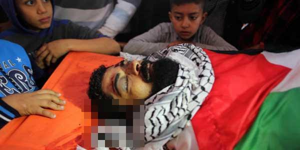Israel Tembak Kepala Demonstran Palestina